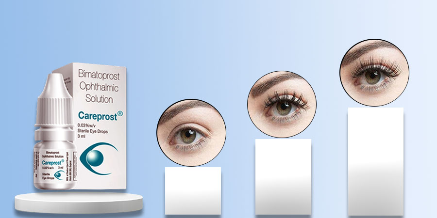 How do Careprost Works for Eyelash Growth?